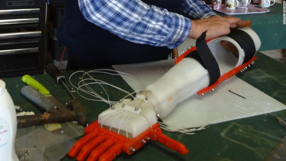 The company was started by Richard van As, who lost four fingers in a carpentry accident. His quest to replace his fingers led him to develop 3-D printed prosthetics.