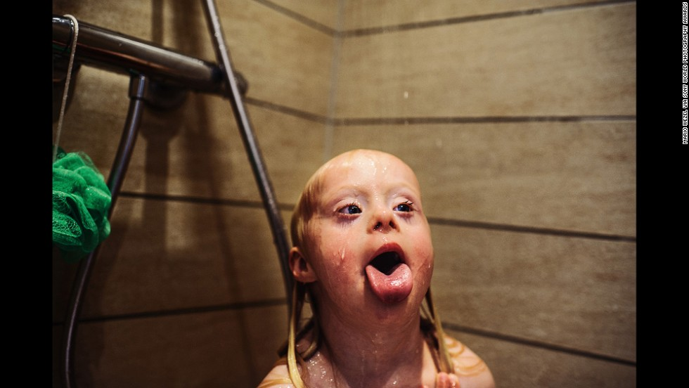 "German photographer <a href=""http://www.mariowezel.com/"" target=""_blank"">Mario Wezel</a> earned first place in the People category for his photographs of a young girl living with Down syndrome in Denmark."