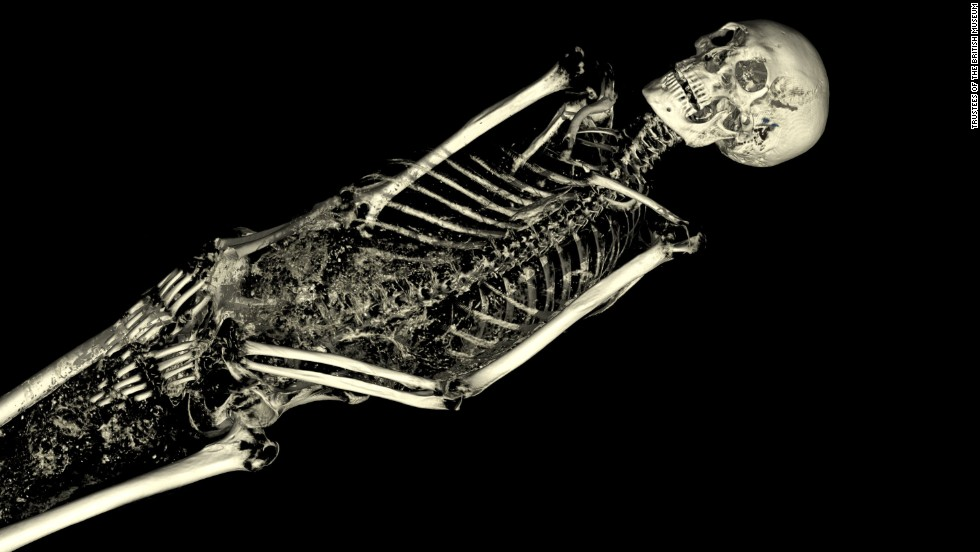 The modeling software allows researchers to virtually 'strip away' not only the fabric encapsulating the mummy, buts its skin as well.