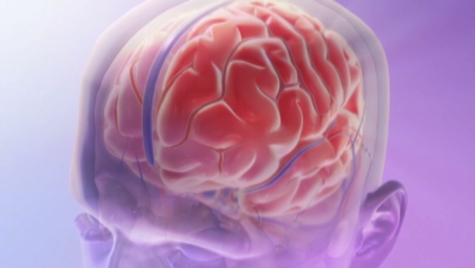 Acupuncture shows promise in migraine treatment, study says