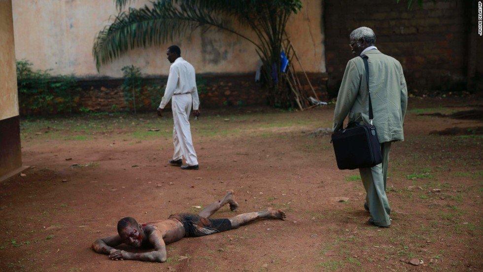 "A man accused of being a thief lies in pain after being attacked by a man with a machete and sticks in Bangui, Central African Republic, on Friday, April 18. Foreign journalists intervened and stopped the beating as the crowd shouted ""he is a thief, he must die."" Police arrived and took the man into custody. He was then taken to a hospital for treatment under police surveillance before being brought before a prosecuting officer."