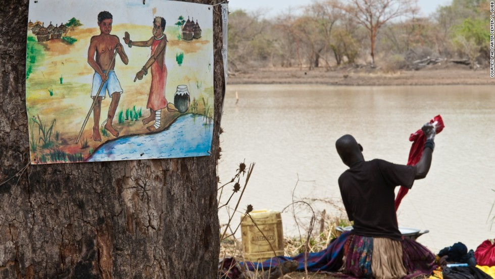 In South Sudan a woman washes clothes in a roadside dam, next to a sign warning of the dangers of spreading Guinea worm disease by entering the water to ease the burning pain caused by an emerging worm.