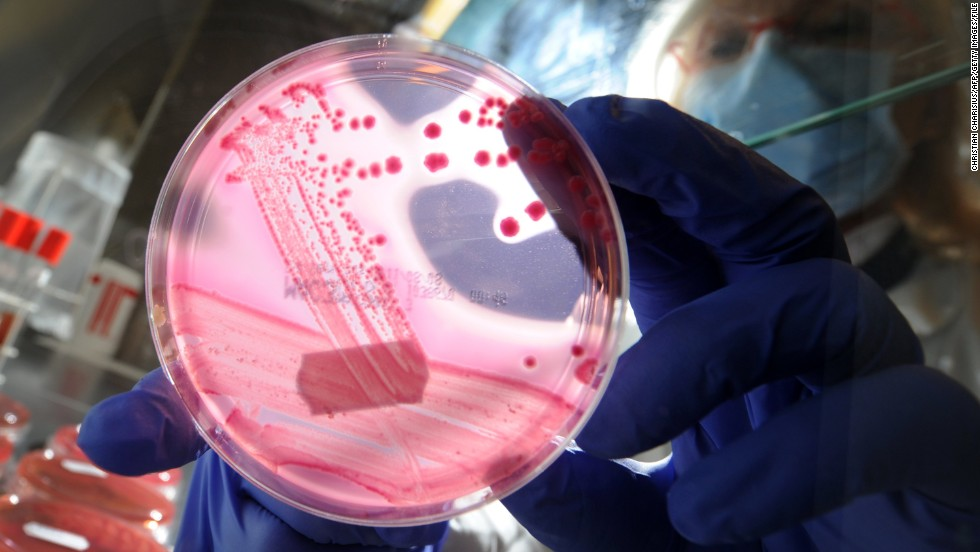A petri dish with a culture of bacterial strains of E. coli, which inspired the shape of the nanobots developed at ETH.