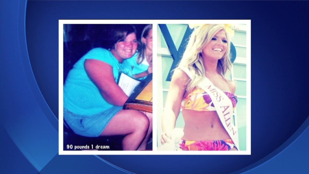 bridges weight loss surgery