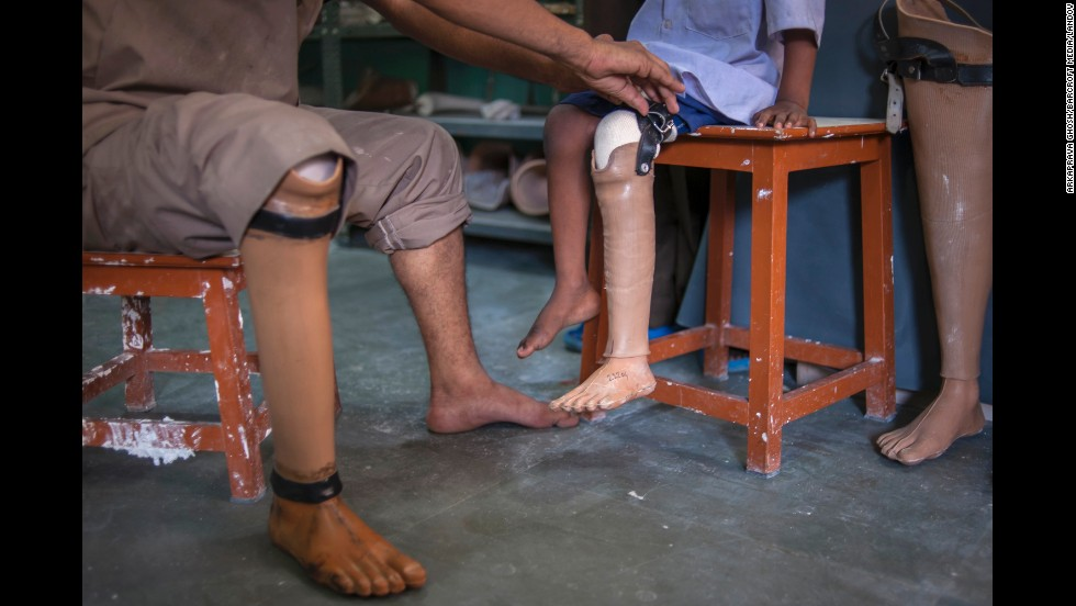 A man with an artificial leg attaches an artificial leg to 8-year-old Ashraf ul-Shiekh at a prosthetics facility in Kolkata, India, on Tuesday, May 27. Ashraf lost his left leg in a tragic road accident two years ago. His impoverished family was unable to afford the artificial limb, but the facility gave him one free of charge.