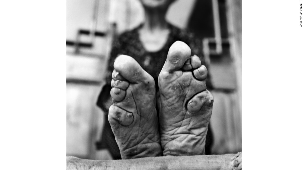 Jo Farrell is a Hong Kong-based photographer who focuses on female traditions that are dying out. In the past eight years, she has photographed 50 women with bound feet in rural China. Most live in an area two hours outside of Jinan, Shandong province. Here we see Zhao Hua Hong's feet.