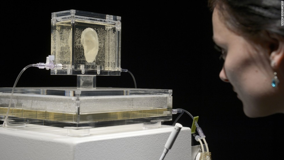 Boston-based artist Diemut Strebe used tissue engineering to create a replica of Vincent Van Gogh's ear.