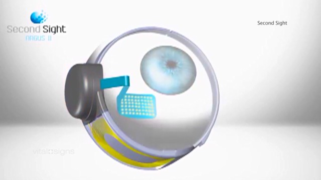 The 'bionic eye'