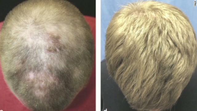newday dnt elizabeth cohen baldness cure arthritis_00004105.jpg