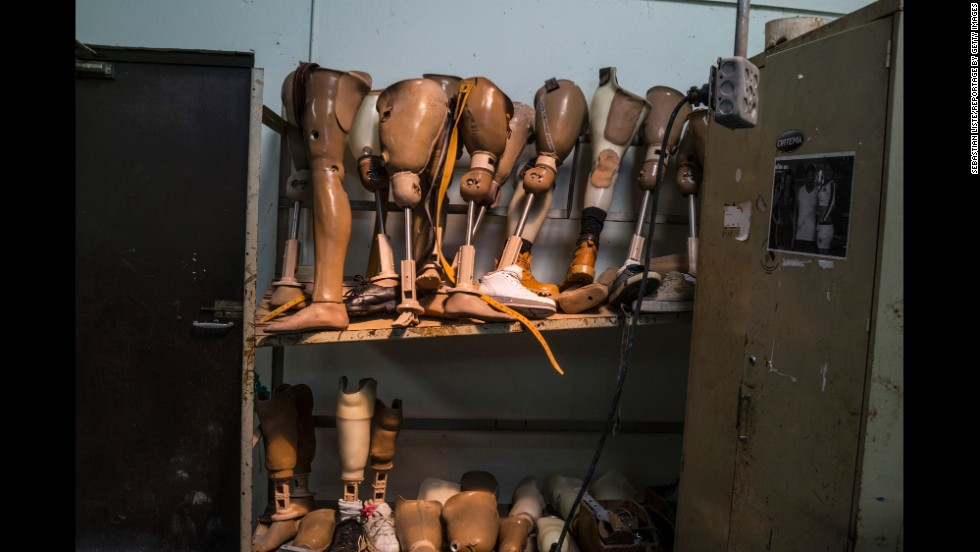 Shelves hold prosthetics at the Aldo Chavarria Hospital in Managua, Nicaragua.