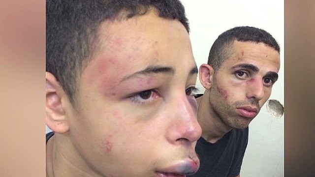 nr serfaty american teen beaten jerusalem_00001514.jpg