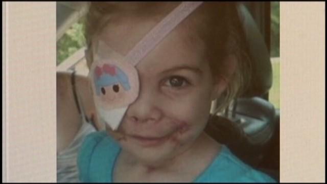 pkg KFC girl to get prosthetic eye_00002628.jpg