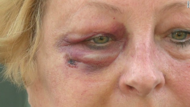 dnt stray bullet hits womans face_00005502.jpg
