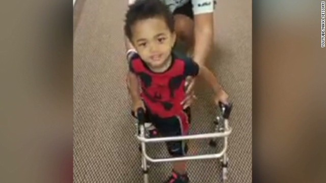 hln toddler amputee walks prosthetic leg mike vick_00003209.jpg