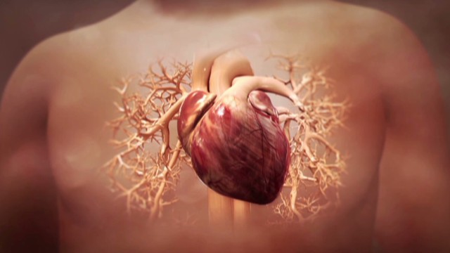 Can heart attack damage be reversed?
