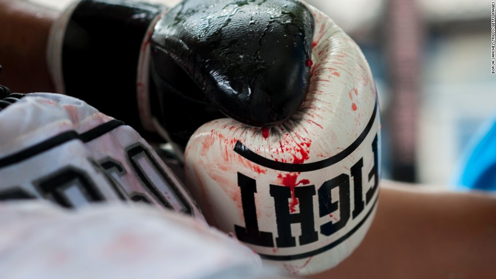 A bloody boxing glove is seen during a Muay Thai bout Saturday, July 12, at the Klong Pai prison in Nakhon Ratchasima, Thailand.