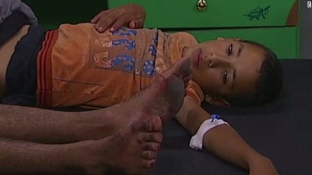 School attack leaves Gazan kids wounded