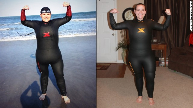 Annette Miller hated how the excess skin around her stomach looked in a wet suit before surgery.
