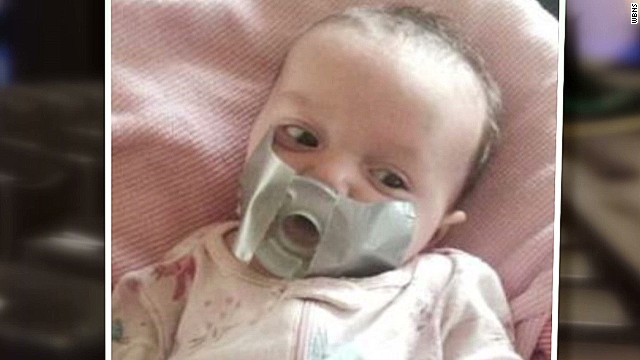 dnt baby pacifier taped to mouth_00001517.jpg
