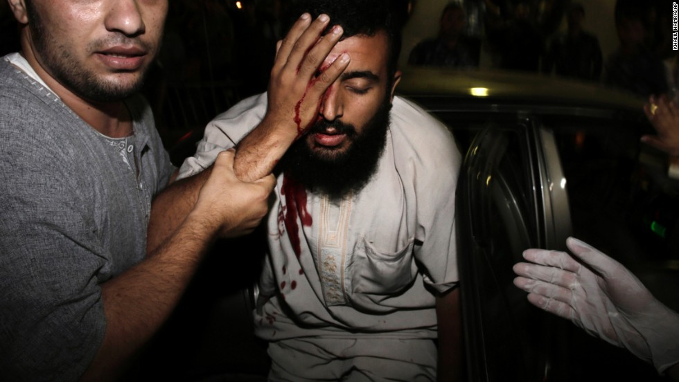 An injured Palestinian man is helped into the Shifa hospital in Gaza City on August 19.