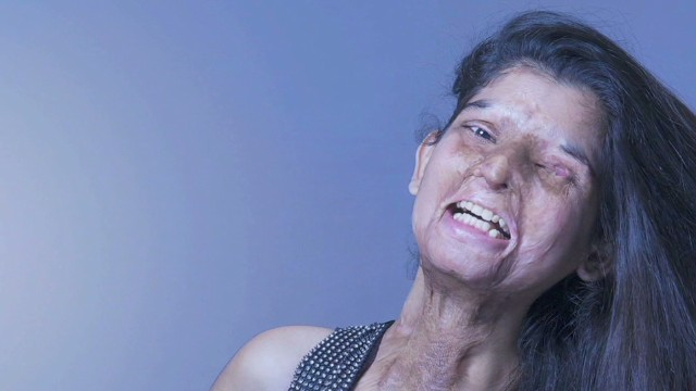 ns pkg udas india acid attack victims_00010006.jpg