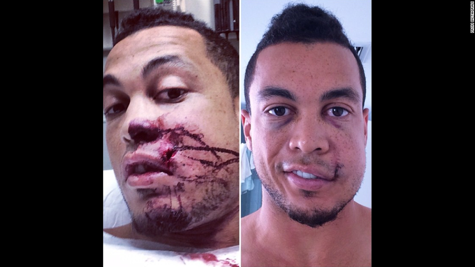 "Giancarlo Stanton, an All-Star baseball player with the Miami Marlins, <a href=""http://instagram.com/p/tA6J_NQ6lg/"" target=""_blank"">posted photos of himself</a> after a pitch hit him in the face Thursday, September 11, in Milwaukee. ""Making huge progress!!"" he wrote on Instagram. ""Want to thank everyone who has played a part in my recovery process. Your kind messages, thoughts & prayers have meant the world to me."""