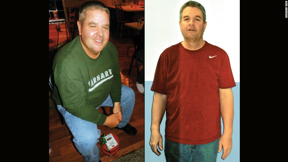 Patrick Davis from Granite City, Illinois, lost 91 pounds.
