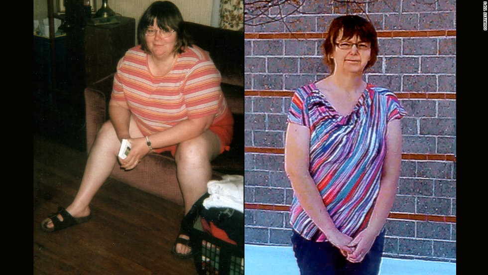 Gladys Richards from Sabattus, Maine, lost 101 pounds.