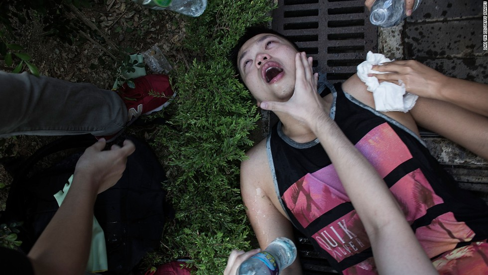 An injured protester is tended to after clashing with riot police outside Hong Kong government complex on Saturday, September 27.