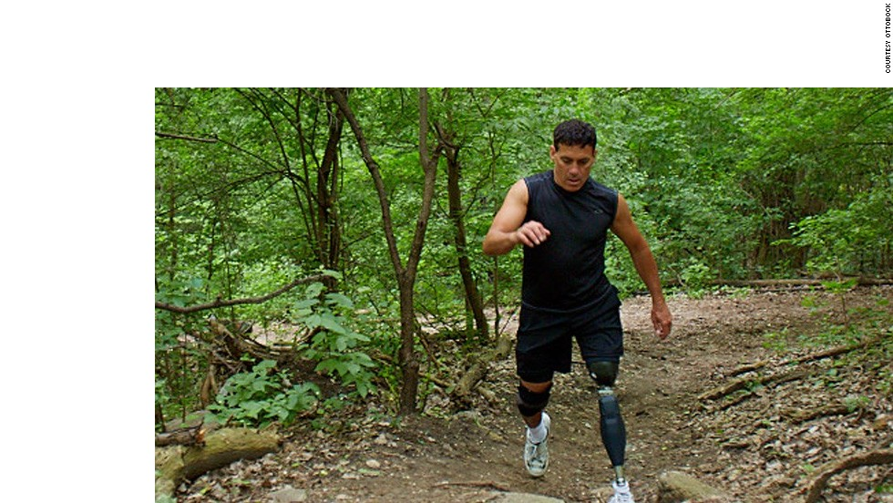 The Genium X3 - considered the most advanced prosthetic leg in the world, developed by the US military.