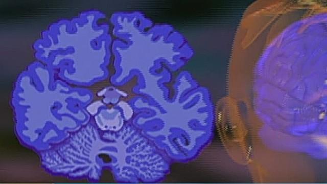 cnnee umana intv understanding nobel prize medecine_00032115.jpg