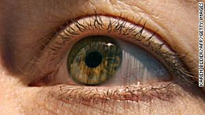 One stem cell treatment stabilizes macular degeneration, another blinds 3 patients