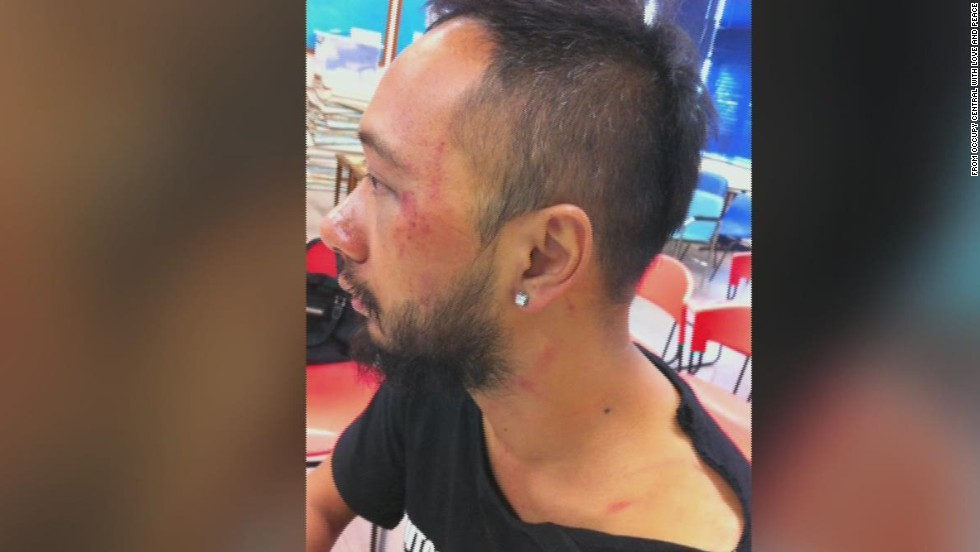 'Police beating' stuns Hong Kong