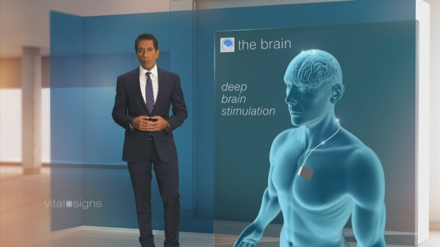 spc vital signs gupta brain a_00011101.jpg