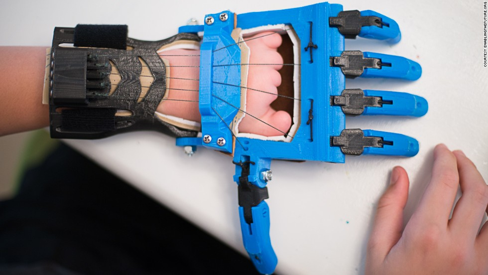 "The Talon hand is a <a href=""http://blog.solidoodle.com/2014/03/father-and-son-make-prosthetic-device-with-their-solidoodle/"" target=""_blank"">popular model designed</a> by a high school French teacher, Peter Binkley, for his son, Peregrine Hawthorne. Both of them are major design and testing contributors to the e-NABLE community."