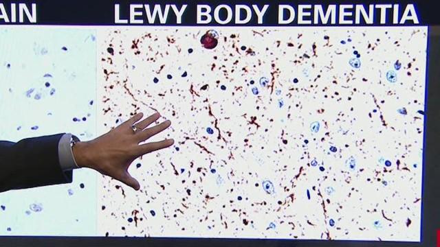 erin gupta williams had lewy body dementia_00013308.jpg