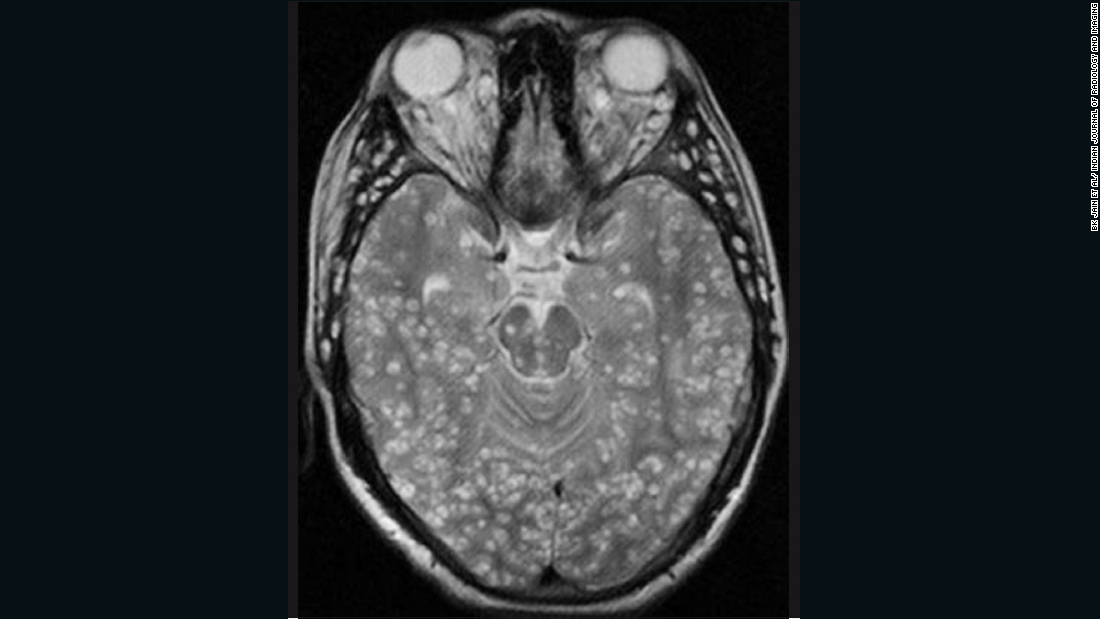 Cysticercosis is the infection of muscle tissue with the larvae of the Taenia tapeworm. The most serious form of the disease, neurocysticercosis, affects tissues in the central nervous system. In the radiology image below, the cysts are identified as white lumps within the brain.