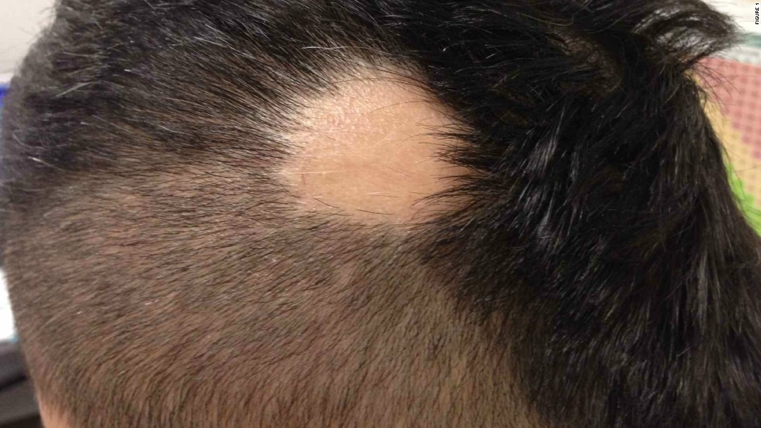 An image uploaded of a patient with alopecia areata, an autoimmune skin disease resulting in the loss of hair on the scalp and elsewhere on the body. The angle of the photo ensured the patient remained anonymous. The app also requires users to obtain permission from patients before posting.