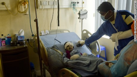 Safir, 2, who was burned in an attack on a bus during a strike, is treated in hospital in Dhaka, Bangladesh.