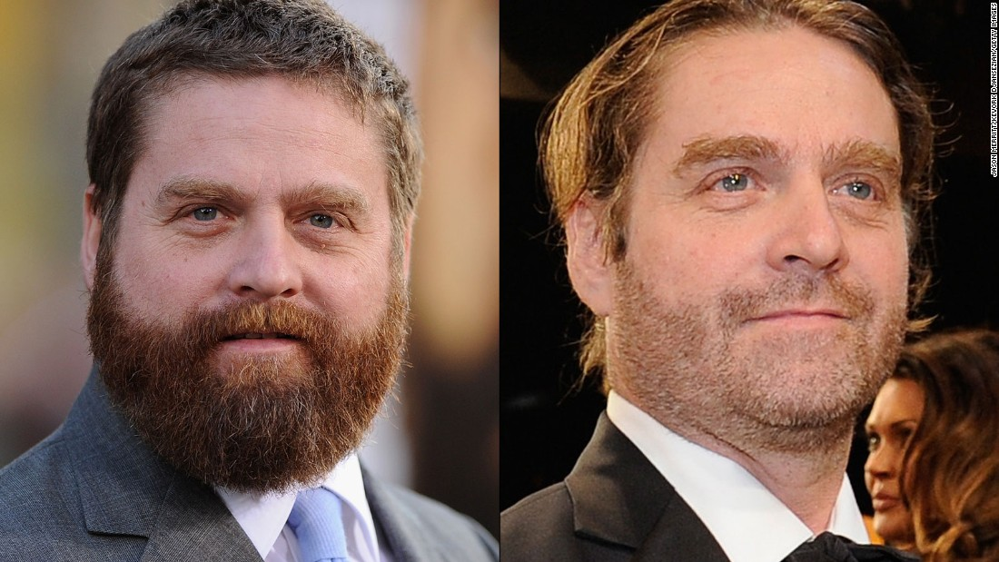 "The transformation of Zach Galifianakis continued January 25 at the Screen Actors Guild Awards, where the actor was barely recognizable from years past. What a difference some pounds and some facial hair can make. He first started slimming down in 2013, <a href=""http://teamcoco.com/video/zach-galifianakis-drinking"" target=""_blank"">when he decided to stop drinking. </a>"