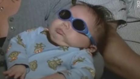 dnt az baby born without eyes _00004913