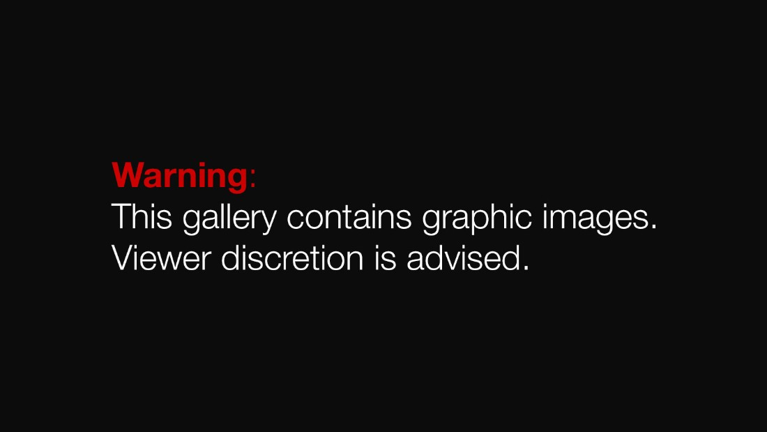 graphic warning - multiple images