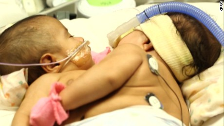 Two 10-month-old girls born conjoined are now separated after a successful and lengthy surgery. CNN affiliate KPRC reports.