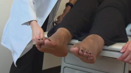 Diabetes Foot Care_00001116