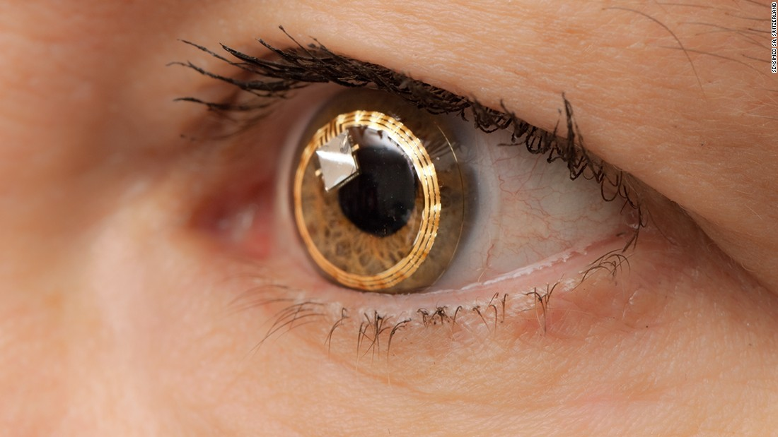 "Swiss biotech firm Sensimed was an early adopter of smart lens technology, to monitor the progression of glaucoma. Its ""Triggerfish"" system comprised a lens and a wireless data receiver worn around the neck, designed to monitor the eye over 24 hours. The technology is hoped to enable earlier diagnosis."