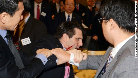 Injured U.S. Ambassador to South Korea Mark Lippert, center, is helped by other participants after he was attacked by a man at a lecture hall in Seoul, South Korea, Thursday, March 5, 2015. Lippert was in stable condition after being slashed on the face and wrist by a man wielding a 10-inch knife and screaming that the rival Koreas should be unified, South Korean police and U.S. officials said Thursday.