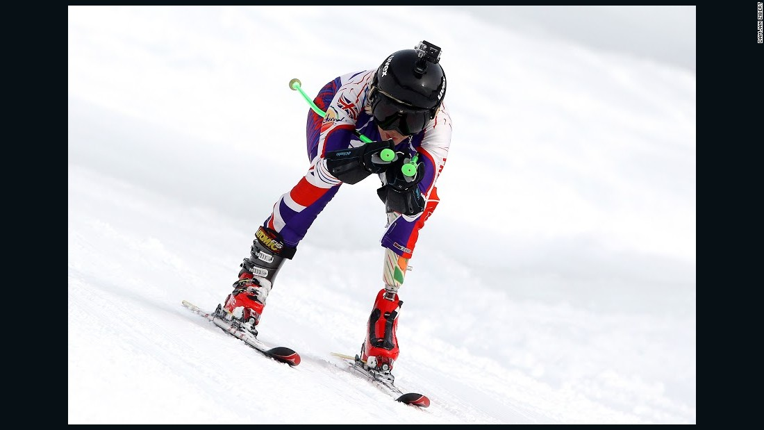 But she lost a leg after being hit by a police motorcycle while crossing the road in 1993 and did not return to the slopes for a few years.