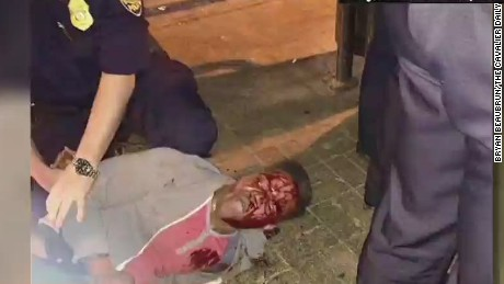 Martese Johnson's violent arrest sparks protests
