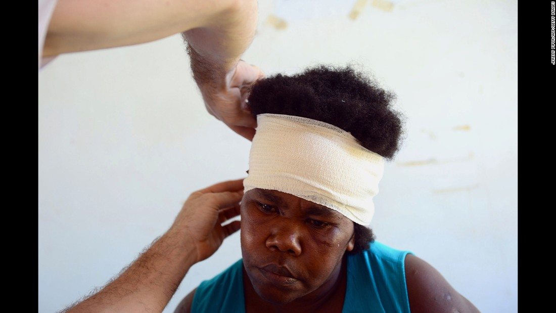 An aid worker treats an injured woman on Tanna Island on Wednesday, March 18.