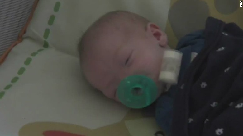 pkg baby born without nose_00012418